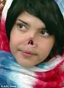 afghan-woman-whose-husband-and-father-cut-off-her-nose-and-face-for-running-away-from-marriage-name-is-aisha