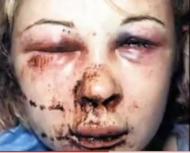 battered-woman1
